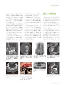 歯科用CTの重要性についての副院長の記事が歯科専門雑誌に掲載 福山市 わだ歯科クリニック