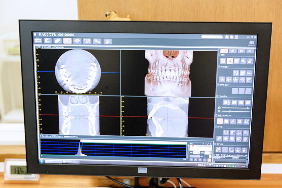歯科用X線CTの各医療機関様へのご案内