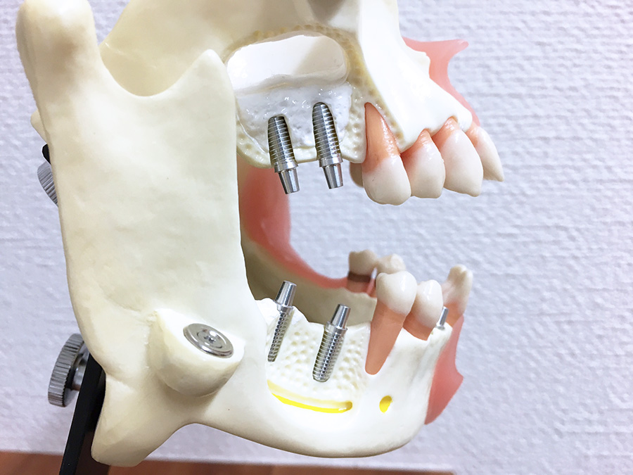 インプラント治療は危ない!?歯科医師しか知らない、安全に必要なものとは?